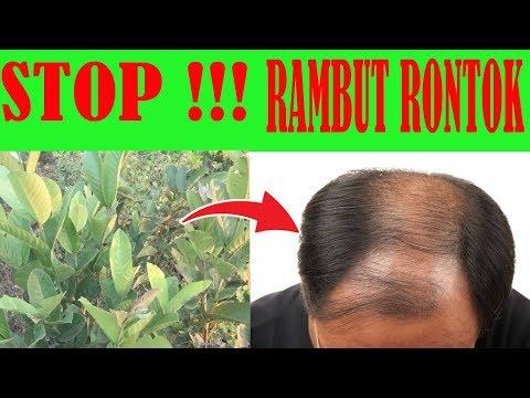 MUDAH!!! Inilah Cara Mengatasi Rambut Rontok dan Melebatkan Rambut Secara Permanen