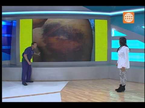 Tratamiento del choque articulaciones de la columna