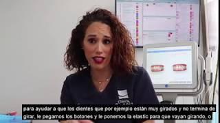 Dra. Victoria Moreno – Cómo corregir maloclusiones
