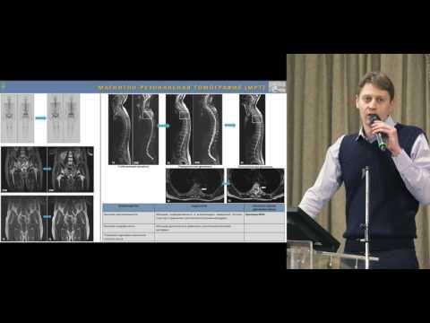 Лапароскопическая операция удаления предстательной железы