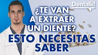 La extracción dental y de muelas del juicio:  preguntas frecuentes - Dentalk! ©