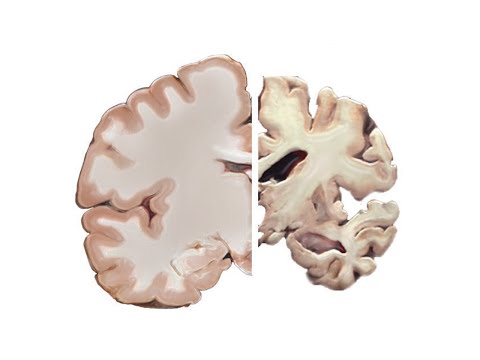 Alzheimer a mozek