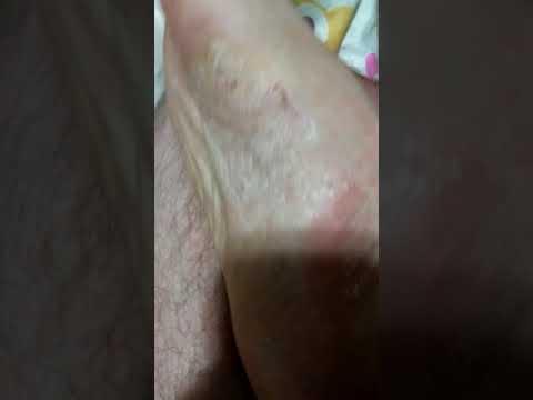 Nata de bioderma em eczema