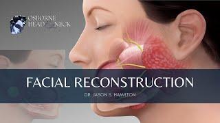 Facial Reconstruction After Parotid Gland Surgery, Explained By Dr. Jason S. Hamilton
