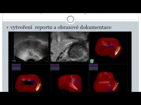 Metody chirurgickým odstraněním prostaty