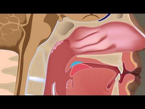 Nach einer Rückenmarksverletzung in der Halswirbelsäule