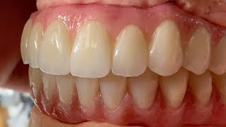 Process of Fabricating Full Mouth Implant Restorations