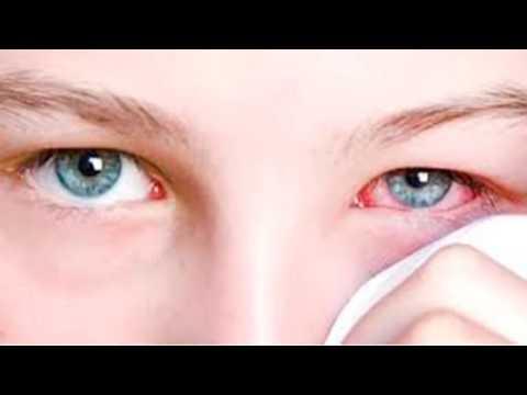 Основные направления коррекции у детей с нарушением зрения