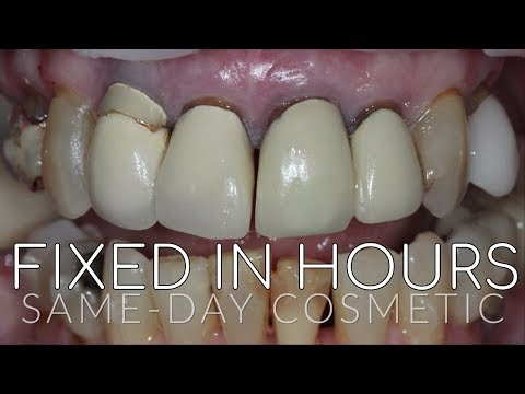 Amazing Smile Transformations and Makeovers -  Cosmetic Veneers, Invisalign, and Dental Implants