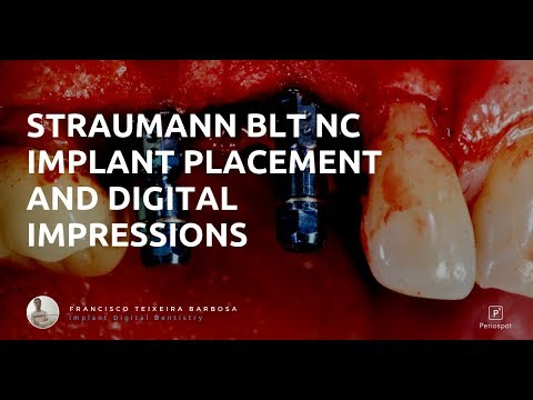 Straumann BLT Implant Placement and Digital Impressions