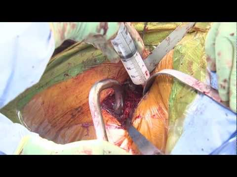 Total Hip Arthroplasty (Exparel)