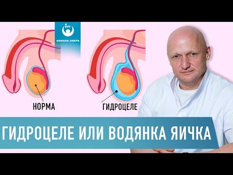 Pirogenal pikkelysömör kezelésére