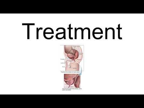 A prosztatitis mágnes kezelése otthon