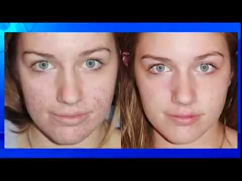 Убрать темные круги под глазами косметологическая процедура