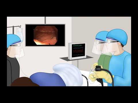 Injektion eines Polypen während der EMR - Animation