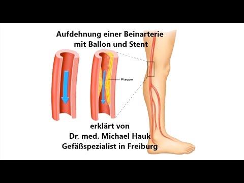 Was ist entzündete Venen auf den Beinen