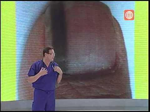 Los tratamientos del hongo de las uñas por las pastillas
