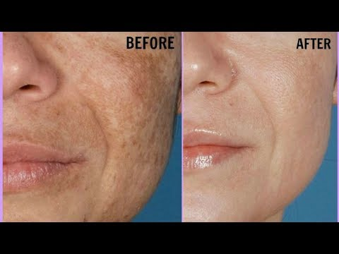 Facial serum whitening
