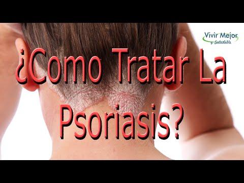 El tratamiento de la psoriasis el lago