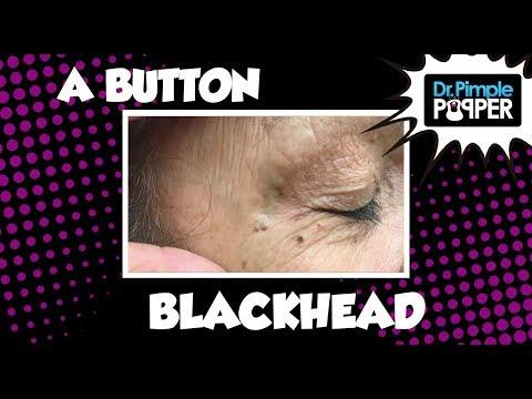 Baby Button Blackhead!