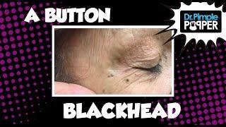 A Tiny Button Blackhead