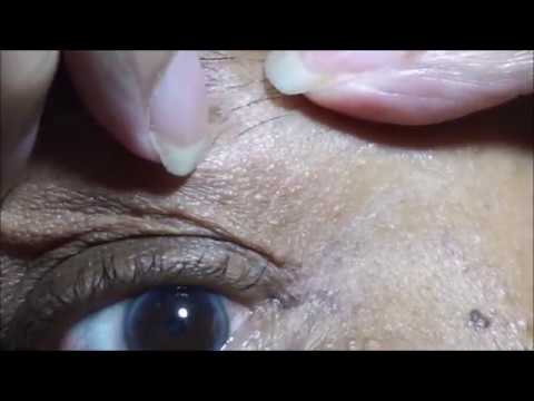 Detoxifiere pt acnee