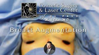Breast Augmentation - Dr. Mark Jabor