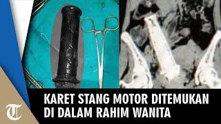 Wanita Mengaku Sakit Perut, Dokter Terkejut Temukan Karet Stang Motor dalam Rahim