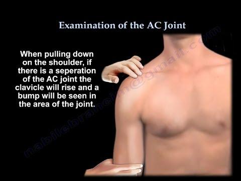 Preparate pentru ligamente și articulații pentru sportivi