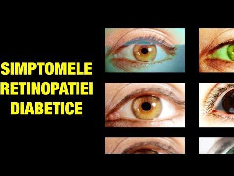 Un ghid pentru sonografie în oftalmologie