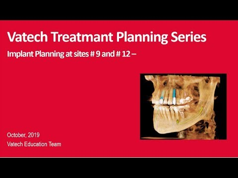 Implant Workflow and Case Presentation
