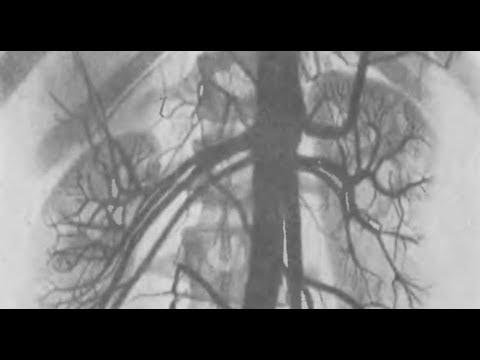 Лечение народными средствами онкологии предстательной железы