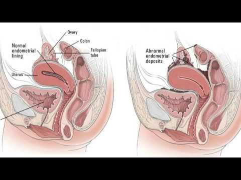 Die scharfen Thrombosen die Vorlesung