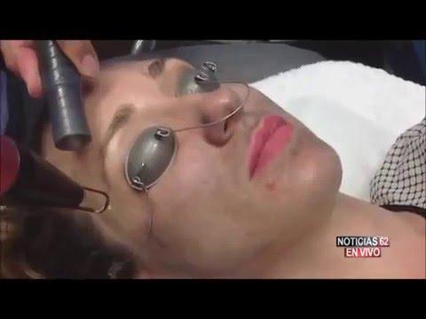 El Acné, Enemigo de la piel: Minuto Medico