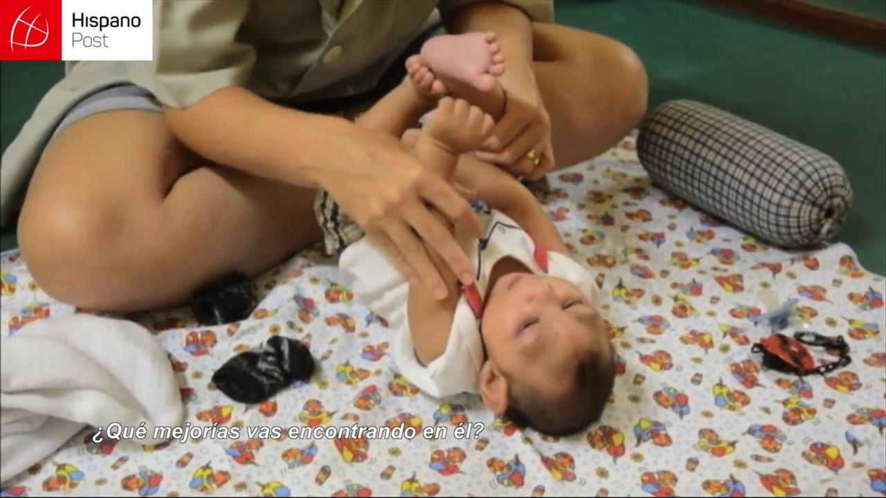 Fisioterapeuta brasileña trabaja con amor y mística para atender a bebés con microcefalia