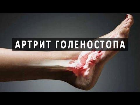 Что нужно знать об артрите голеностопного сустава