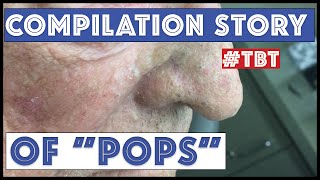 """Pops"" and his BEST blackhead extractions - TBT"