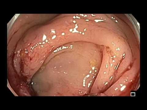 Tongue papillae enlarged treatment