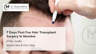 Avail FUE Hair Transplant Surgery By Specialist Dr.Malay Mehta