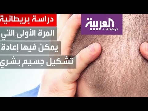 العرب اليوم - شاهد: دراسة بريطانية تكتشف مادة كيميائية تواجه تساقط الشعر