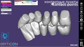 Exocad + Dentograf