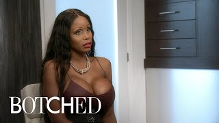Drs. Terry Dubrow & Paul Nassif Meet a Real-Life Sugar Baby | Botched | E!