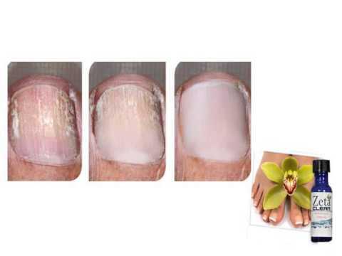 Gribok der Beine bei kurej die Behandlung