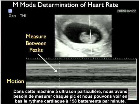 Les raisons de lapparition de la thrombose des veines des membres inférieurs