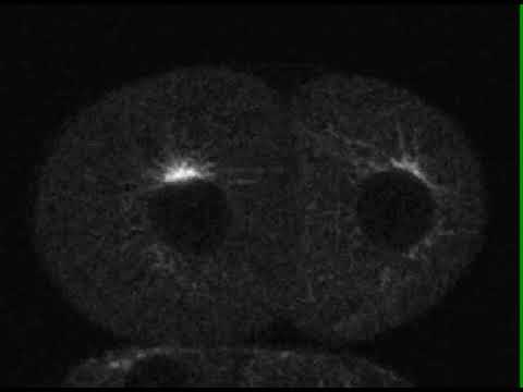 Still image from the Video of Spindle assembly in a C. elegans embryo YouTube video
