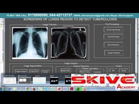Screaning of lungs region to detect Tuberculosis