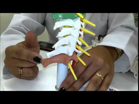 Lesioni radice nervosa trattamento lombosacrale della colonna vertebrale
