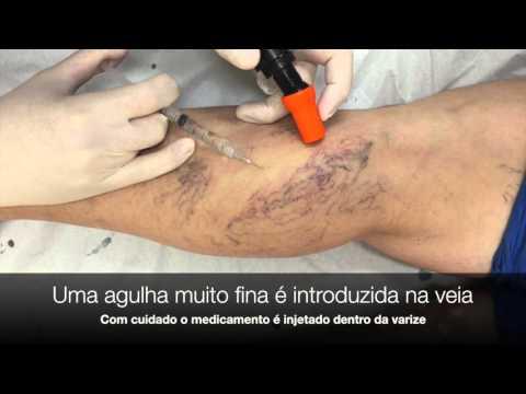 Tratamentul acut varicoză