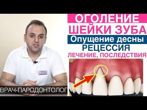 Оголение шейки зуба, рецессия десны (опущение десны). Причины и что делать?