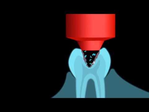 Die Thrombose der oberen Extremitäten nach mkb